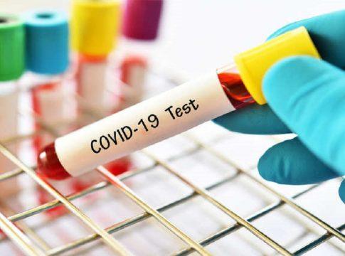 covid positivity in Delhi crosses 15 per cent; Tests will increase