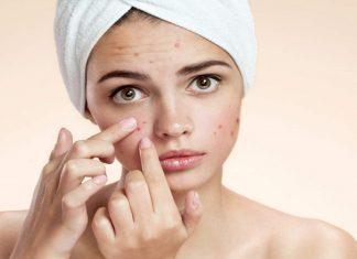 MalabarNews_acne face
