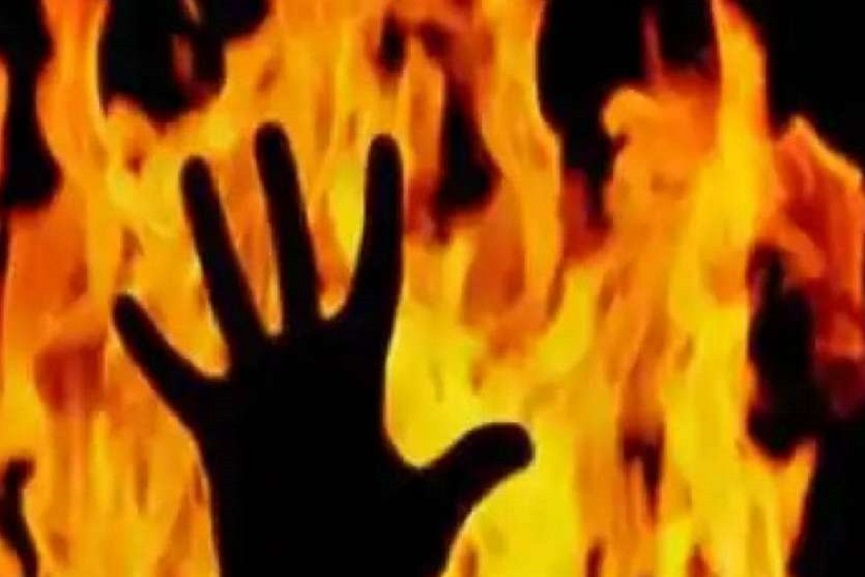 Couple burned