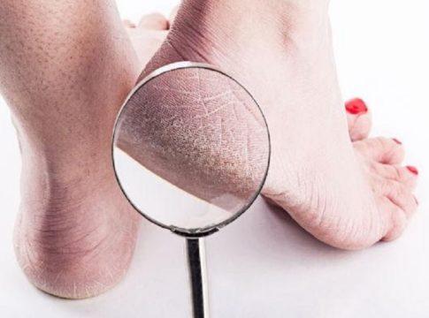 cracked legs-remedies