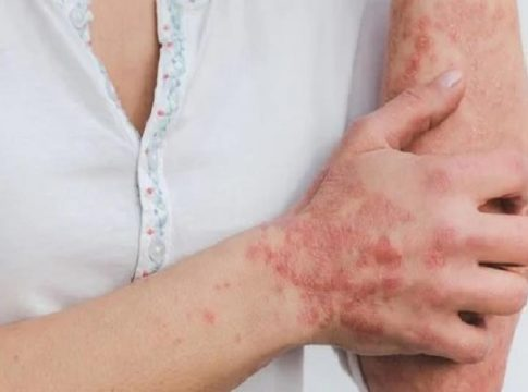 Health Issues Like Skin Problems and Hair Loss After Covid